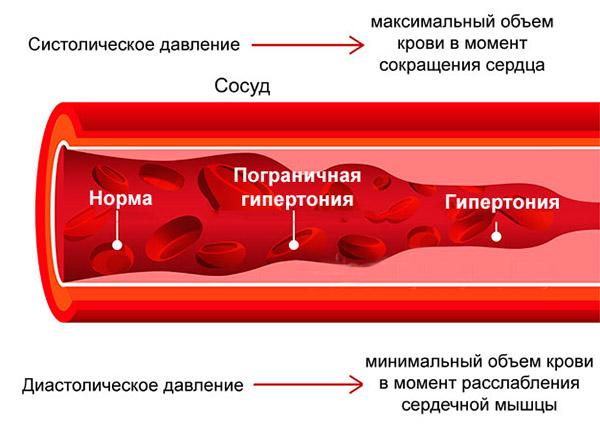 глицин при гипертонии