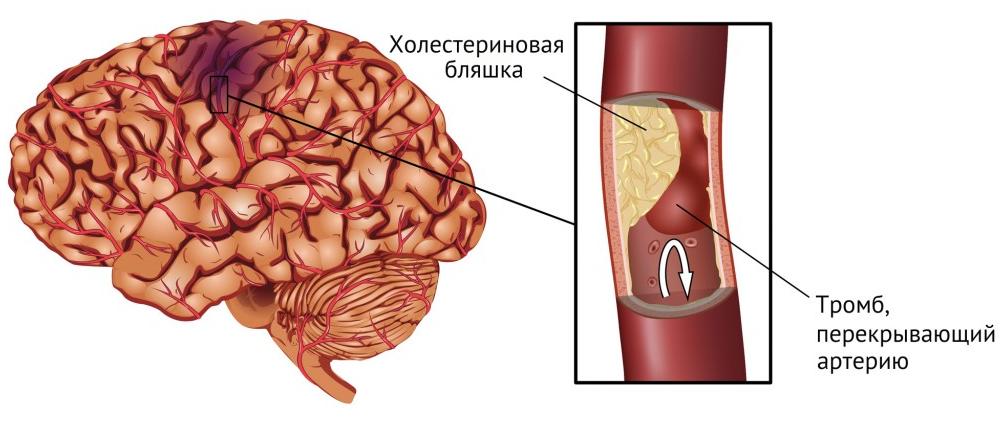 как принимать глицин при ишемическом инсульте