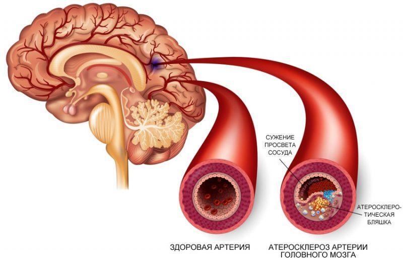 атеросклероз сосудов головного мозга стадии