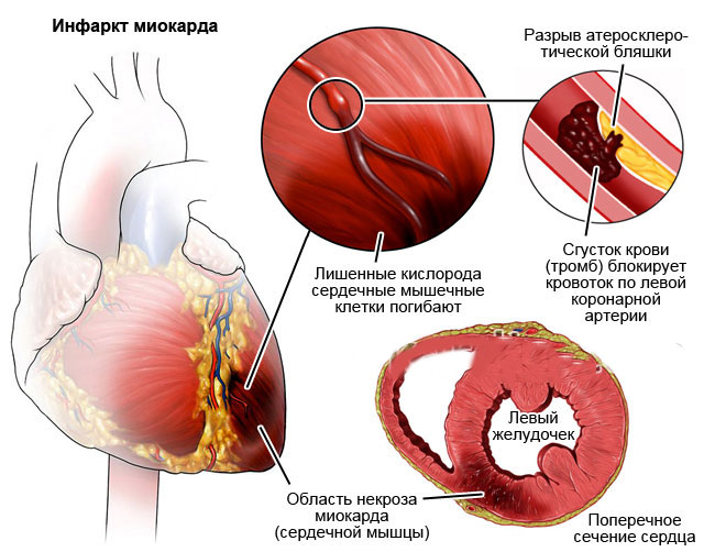 восстановление после инфаркта миокарда