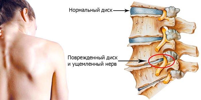 Остеохондроз шейного отдела позвоночника фото