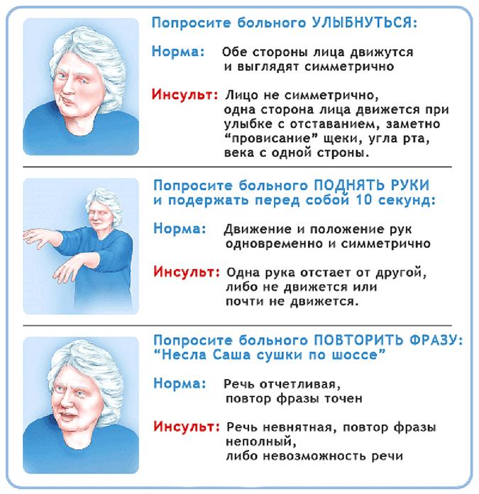 первые признаки инсульта у человека