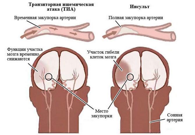 показания к глицину и циннаризину